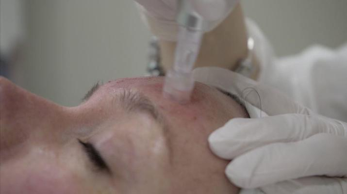 eDermaStamp treatment picture 18